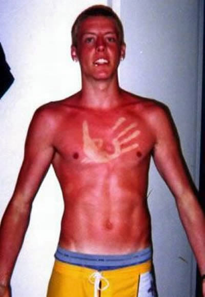 Funny sun tans ! Funny pictures!